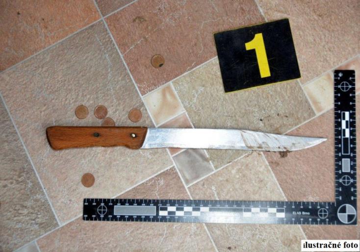 Többször is hátba szúrt egy férfit a fiatal támadó, a rendőrség gyilkossági kísérlettel gyanúsította meg